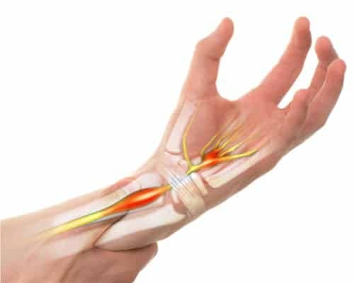 Carpal tunnel syndrome compressing the median nerve